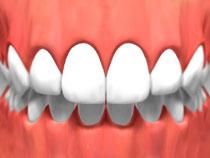 Invisible braces